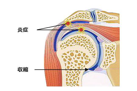 ヒアルロン 酸 注射 肩
